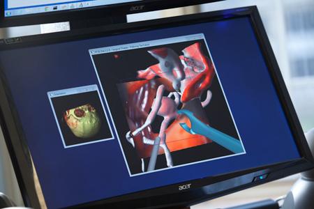 Surgical-Theater-SRP-closeup-450web.jpg
