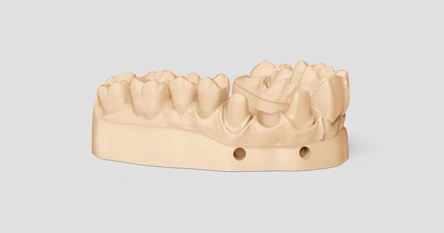 Moule dentaire créé par la FabPro